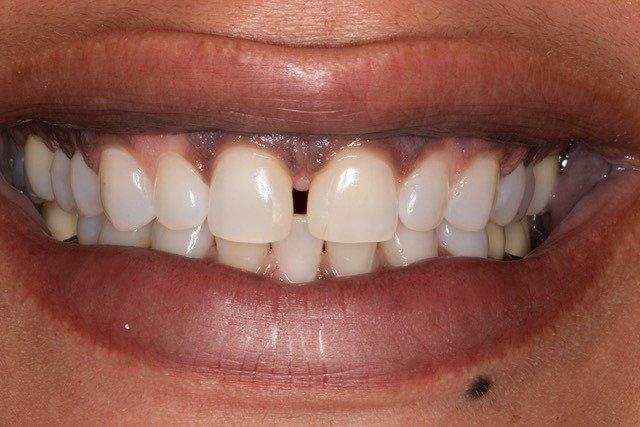 Purple Gums - Gum Pinkening - Gums Pinkened - Britegums - Ginguval Umiformity Modulation Procedure -   Brightgums -  Bright gums -   Brite gums -  Britegums procedure -  Gum Bleaching -  Gum Brightening -  Gum Lightening Service -  Black Gums -  Dark Gums -  gums hyperpigmentation -  Gingival Depigmentation -  Gums Depigmented -  Racial Pigmentation -  Ethnic Pigmentation -  Multifocal Pigmentation -  Physiologic Pigmentation -  Diffuse Pigmentation - GUMS - GUMS Procedure