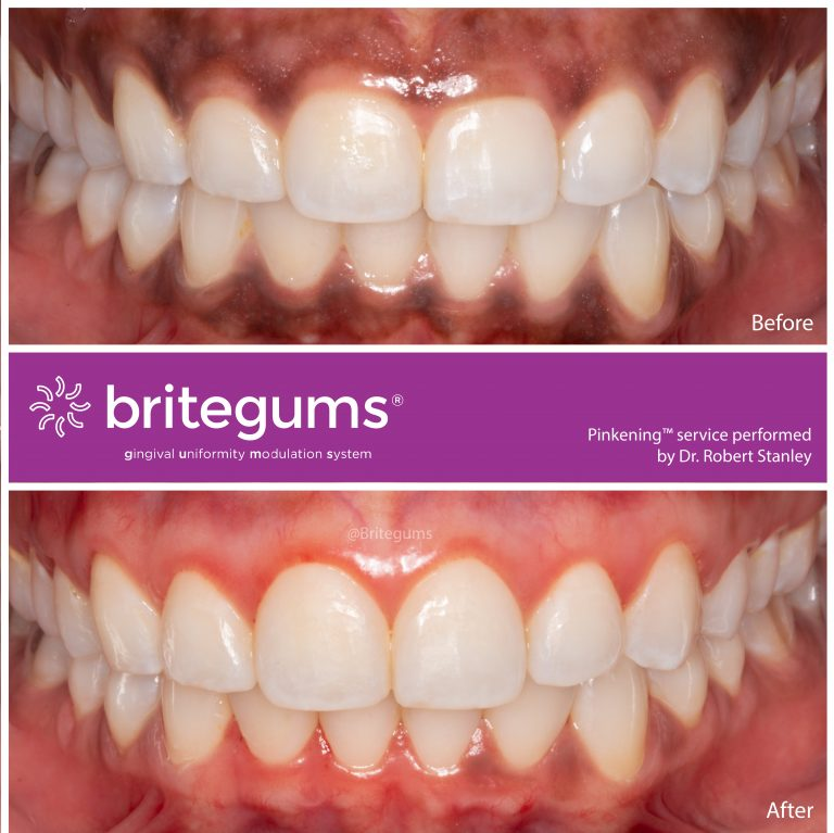 the alternative to gum bleaching 01 768x767