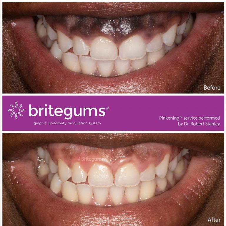 the alternative to gum bleaching 02 768x767