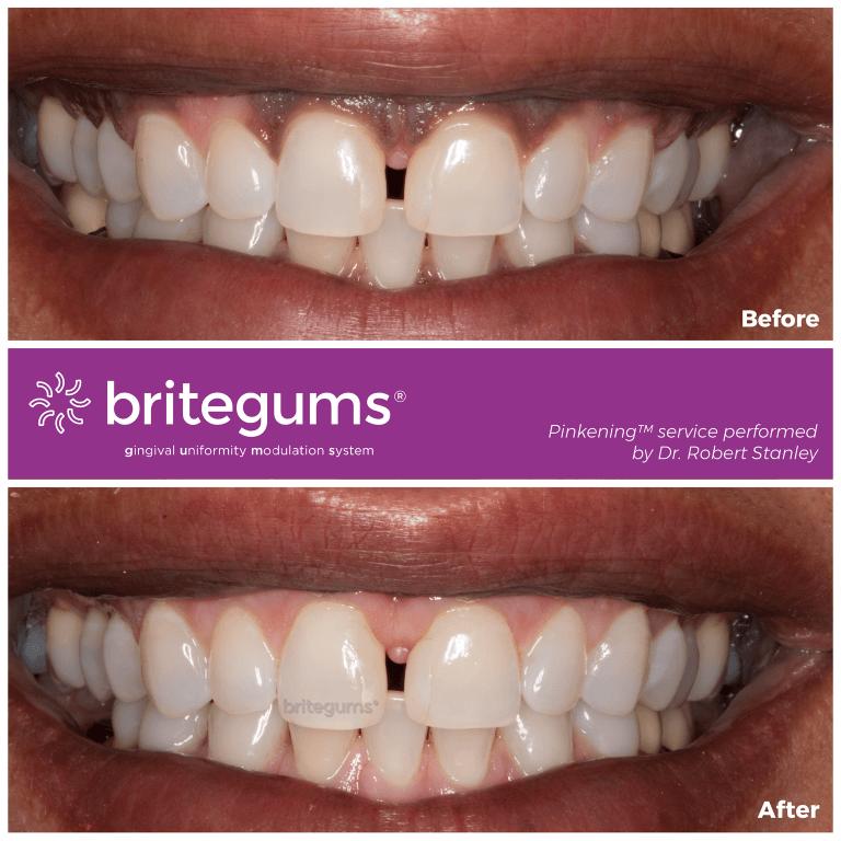 the alternative to gum bleaching 03.jpg 768x768