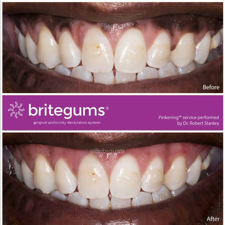 the alternative to gum bleaching 04 768x767