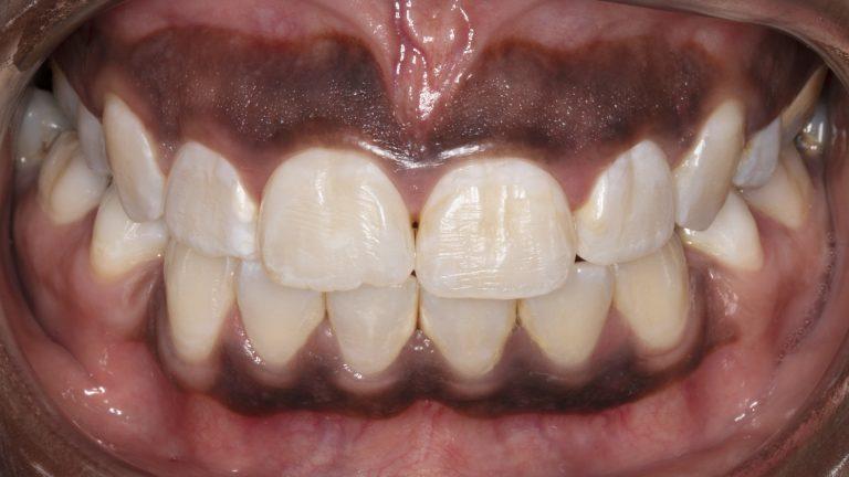 gum bleaching cary nc 768x432