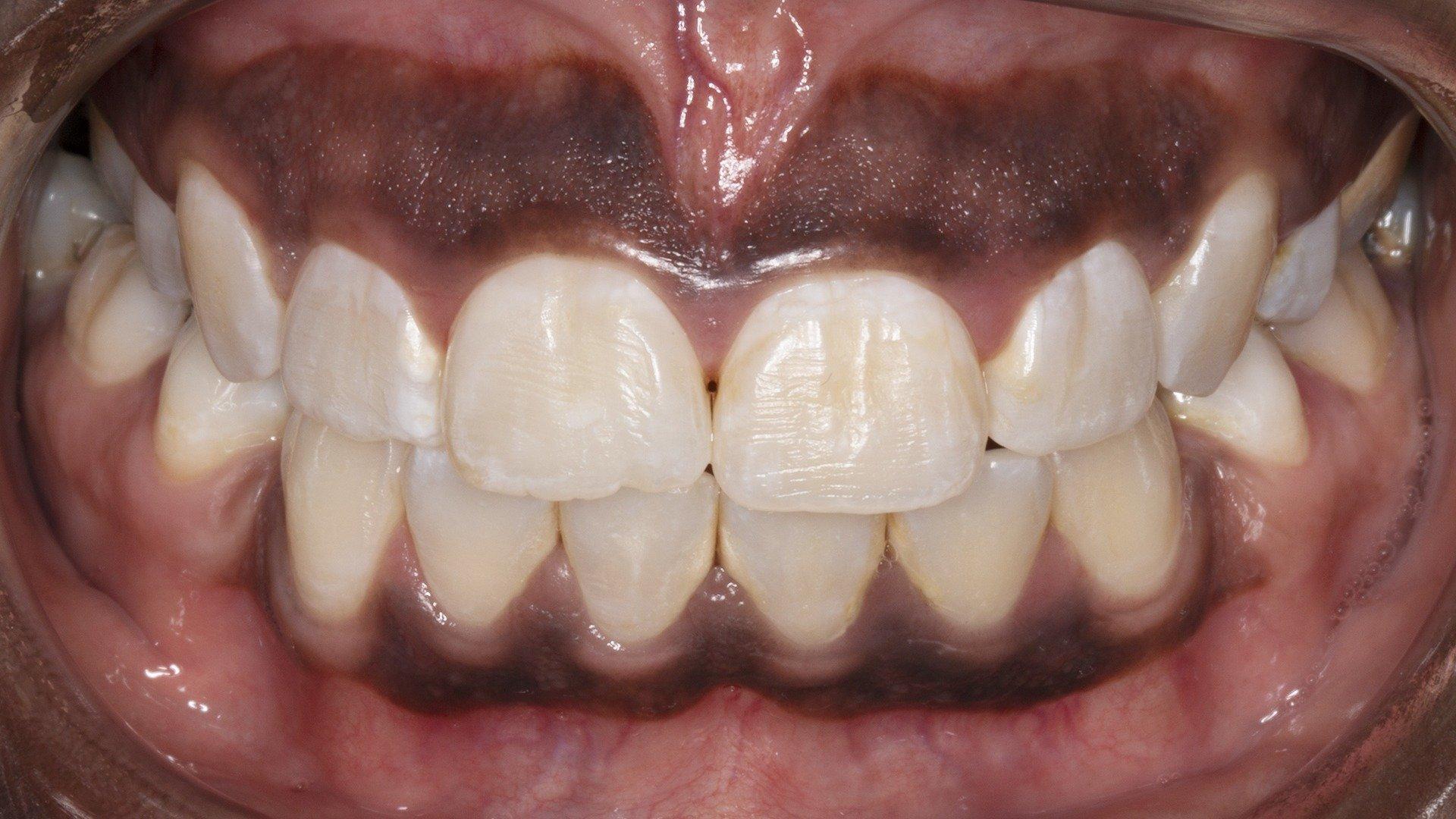 gum bleaching alternative